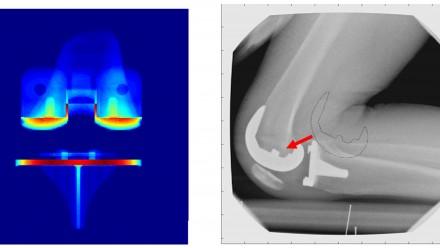 Knee Biomechanics, PhD project